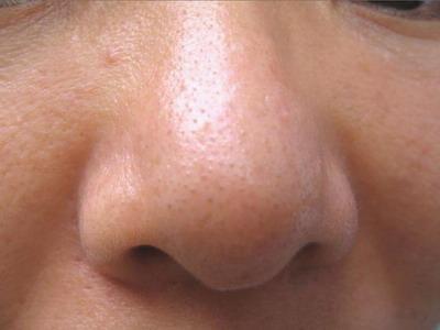 面相算命图解:鼻子